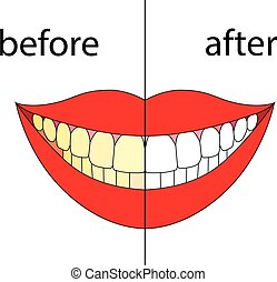 Smiling before after. Vector