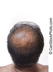 Hair loss - Human alopecia or hair loss, adult man bald head...