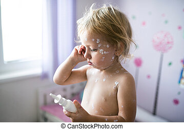 Little girl with chickenpox, antiseptic cream applied to the...