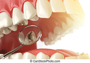 Human tooth with caries, hole and tools. Dental searching...