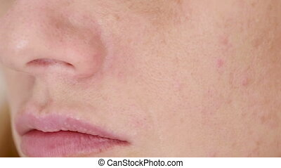 Woman crushes acne on the face. oily skin. problem skin -...