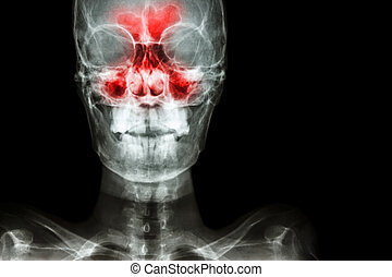 normal human's skull and blank area at right side - film...