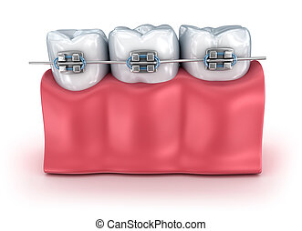 Teeth with braces isolated on white. Medically accurate 3D...