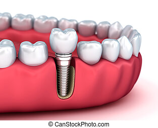 Tooth human implant, Medically accurate 3D illustration...