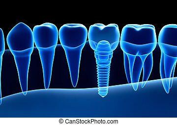 X-ray view of denture with implant.  Xray view. Medically accurate 3D illustration