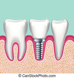 Human teeth and dental implant in jaw orthodontist medical...