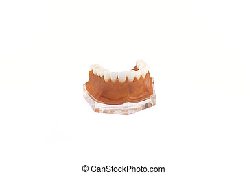 jaw model with implanted dentures