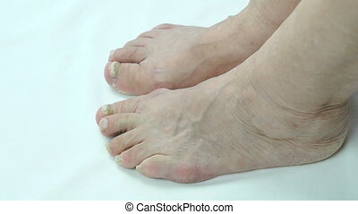 Onychomycosis with fungal nail infection of person's foot