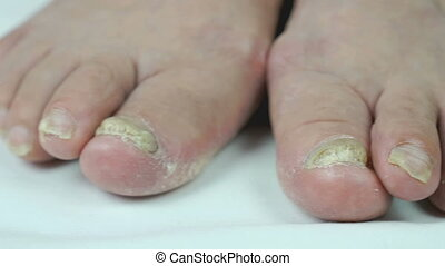 Fungus infection on nails of woman's foot close-up