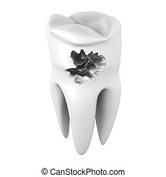 Caries - 3D rendered illustration. Isolated on white.