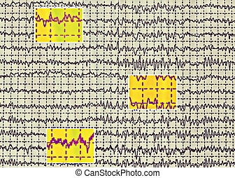 Brain wave on electroencephalogram EEG for epilepsy
