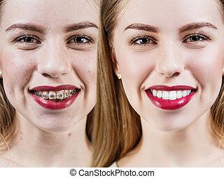 完美, 以前, 以後, 括號, 牙齒
