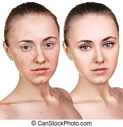 Woman with problem skin on her face before and after...