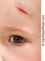 Wound child - Physical injury blood wound skin human child...