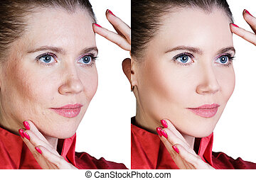 Woman before and after cosmetic procedure - Middle aged...