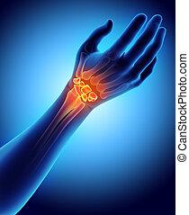 3D illustration of Carpal, medical concept. - 3D...
