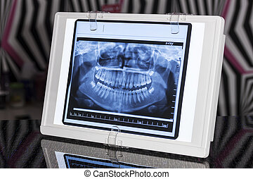 Panoramic Xray Viewer