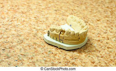 production of dental implants. Photographed in the dental...