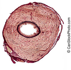 vas deferens of a rat - microscopic cross section showing...