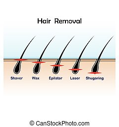 Hair removal colour - Hair removal variations with different...