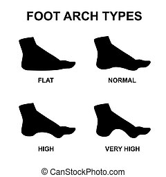 Set of flat foot, high arch - Foot arch types infographics....