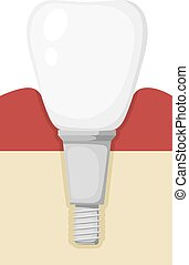 Vector chematic illustration of a prosthetic tooth. Cartoon...