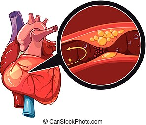 Myocardial infarction vector - Myocardial infarction....