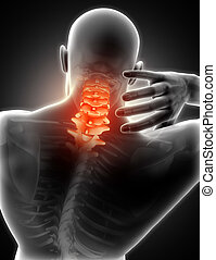 3D medical image of man with neck pain - 3D render of a...