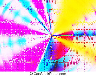 brain wave on electroencephalogram, EEG for epilepsy,...