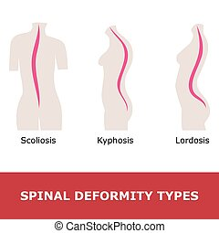 spinal disease - scoliosis, lordosis and kyphosis. vector...