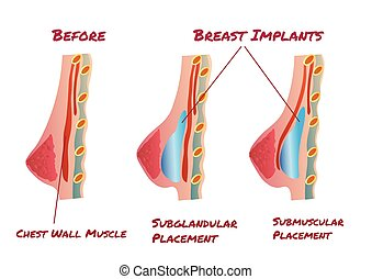 Breast Implant infographic before and after