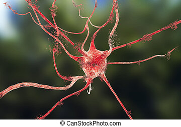 Apoptosis of neuron which is observed in different diseases