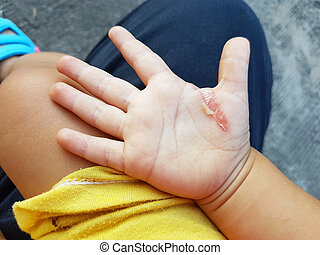 wound in the hand of a child from an iron burn.
