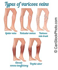 Types of varicose veins. Types of varicose disease in human...