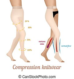 Compression knitwear for varicose veins in the legs. Stockings to improve blood flow.