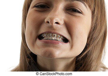 Girl smiles with bracket on teeth - Young beautiful girl...