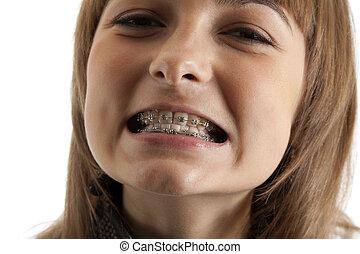 Girl smiles with bracket on teeth - Young beautiful girl...