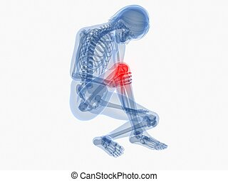 painful knee - 3d rendered illustration of a female skeleton...
