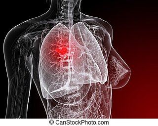 lung cancer illustration - 3d rendered illustration of a...