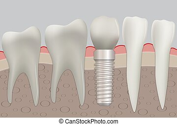 Normal teeth and dental implant. Vector illustration.