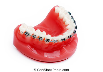 Denture with braces , upper jaw , isolated on white