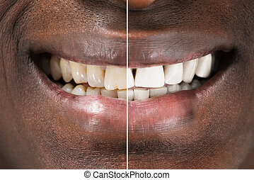 Man Teeth Before And After Whitening