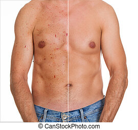 Close-up Of Man Showing Result Of Skin Treatment - Close-up...