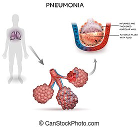 Pneumonia illustration, human silhouette with lungs, close...