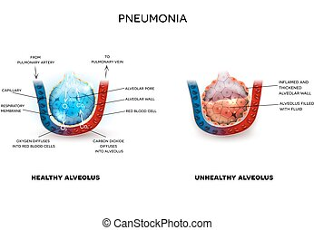 Pneumonia and healthy alveoli - Pneumonia illustration,...