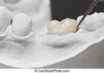 dental onlay on a cast model - closeup for dental onlay on a...