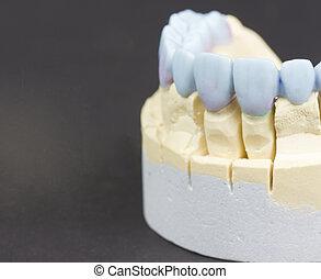 wax denture - closeup for a mock up of a dental circular...