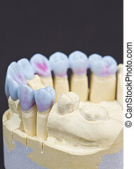 wax denture - closeup for a mock up of a dental circular...