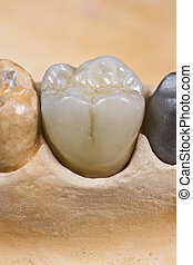 ceramic crown for molar teeth - closeup for a ceramic dental...