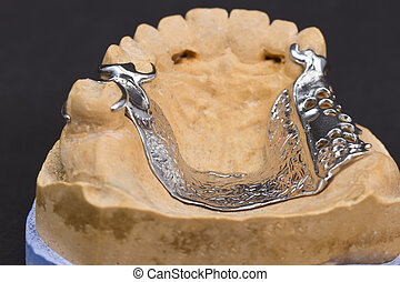 metal framework of a partial prothesis - Dental cast moulds...